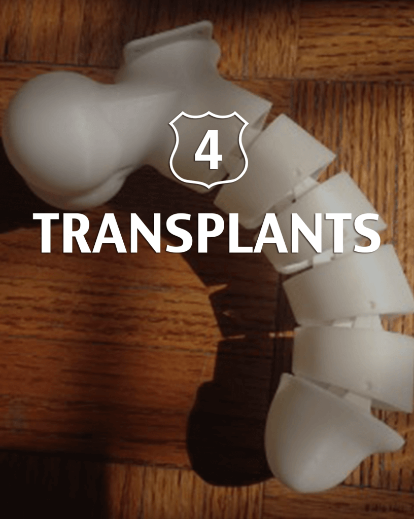 Transplantants Alternative to Viagra